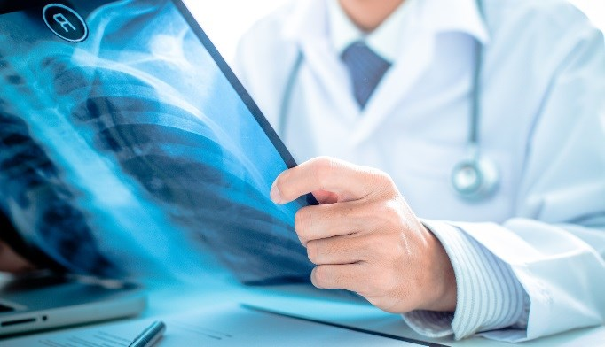 VZV-Related CAP Linked to Significant Mortality, Morbidity Rates