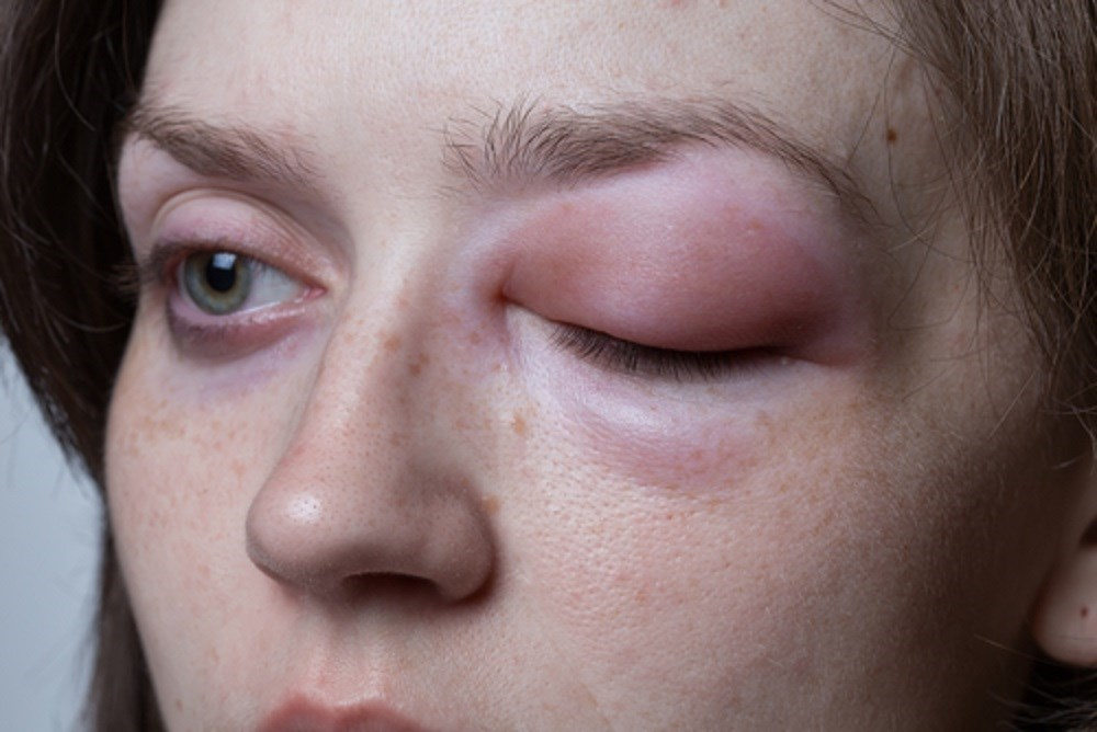 Hereditary Angioedema Breakthrough Attacks Successfully Treated With Icatibant
