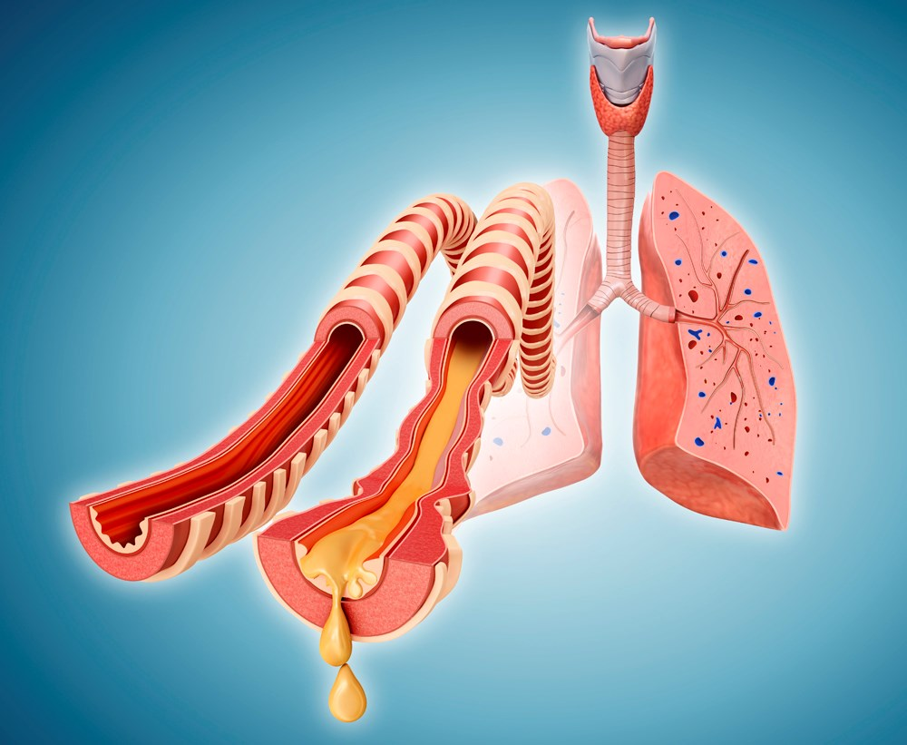 Pulmonary Rehabilitation Benefits in COPD, Lung Cancer, and Other Respiratory Conditions