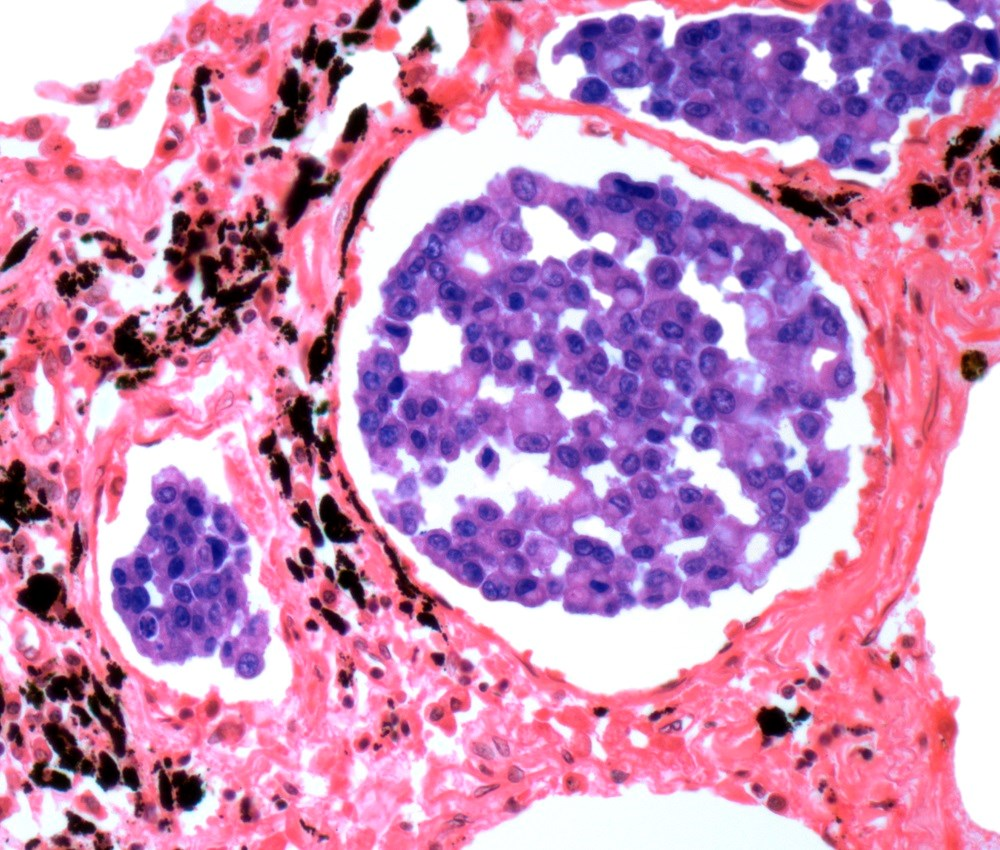 Alectinib was granted priority review for use in patients with ALK-positive metastatic non-small cell lung cancer