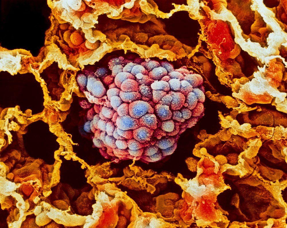 Improving Survival in Resected NSCLC With Adoptive Cellular Immunotherapy