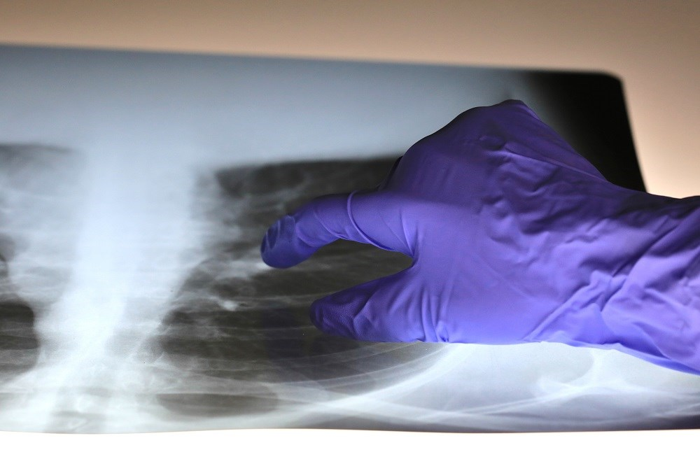 Clinicians should consider the mechanism of ventilation-induced lung injury when applying evidence-based recommendations.