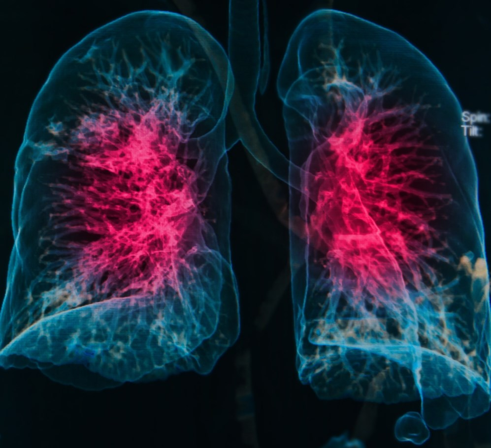 Inhaled Corticosteroids Do Not Increase Risk for Pneumonia in COPD
