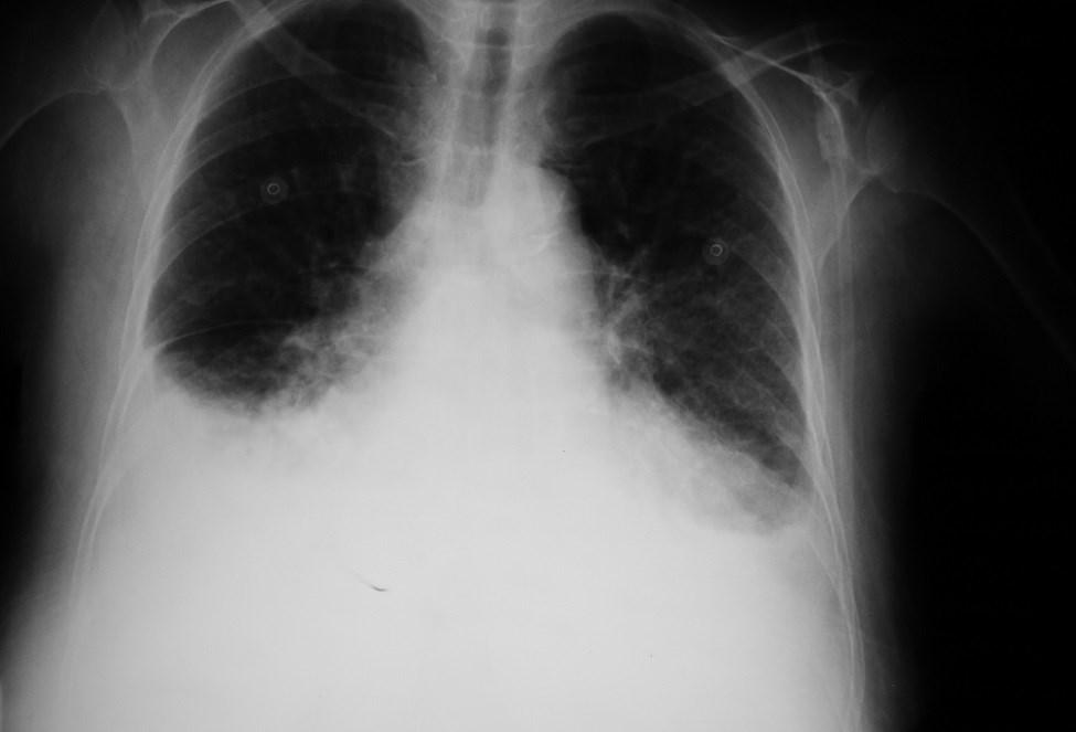 Hemodialysis Patient Readmission Often Due to Pulmonary Edema