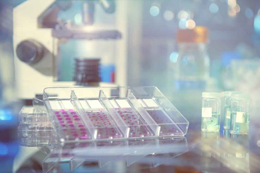 Liquid Biopsy May Be a Noninvasive Measure for Treatment Response in NSCLC