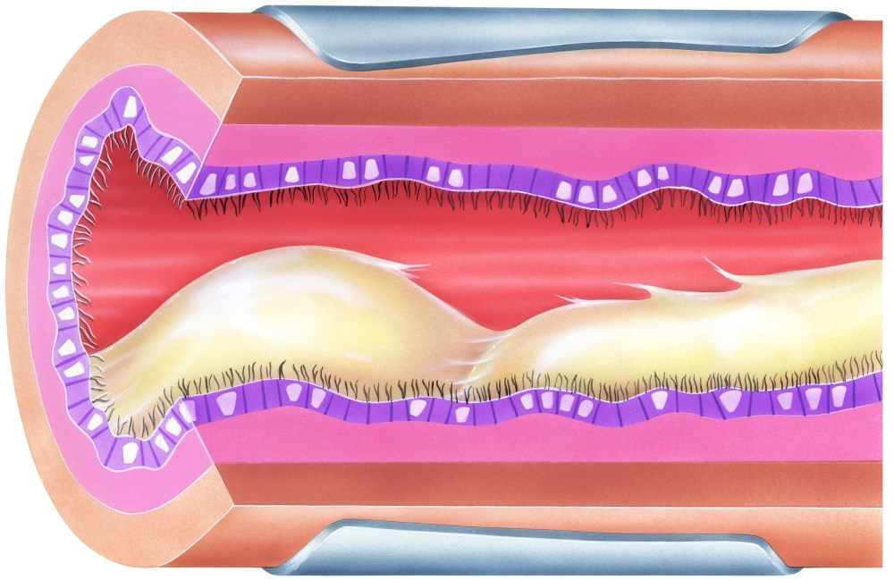 CFTR Modulator Therapy With Tezacaftor-Ivacaftor in Cystic Fibrosis