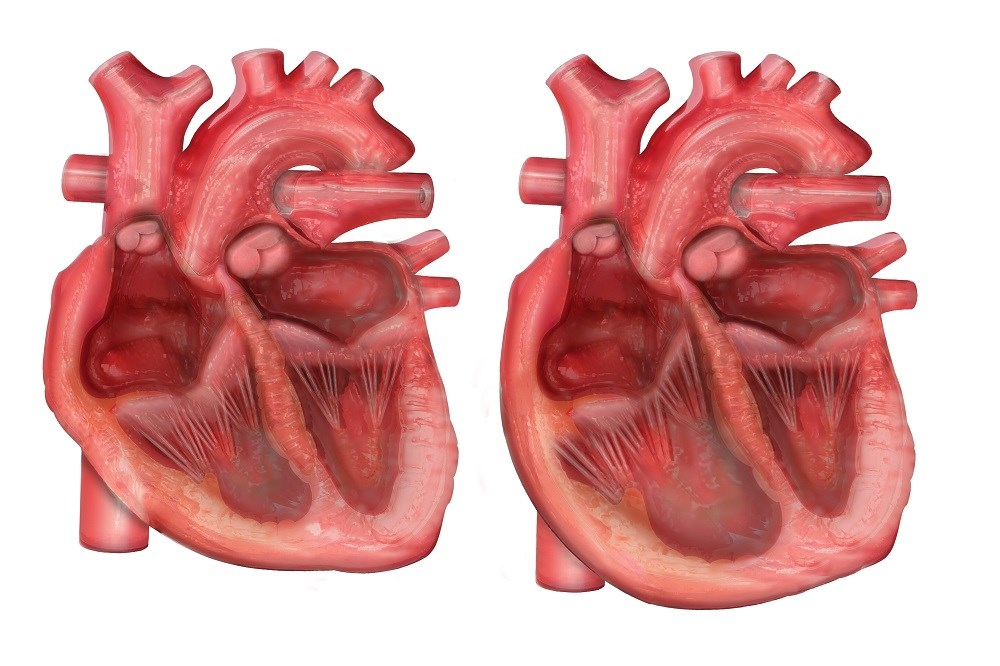 Riociguat Studied in Pediatric Patient With Pulmonary Arterial Hypertension