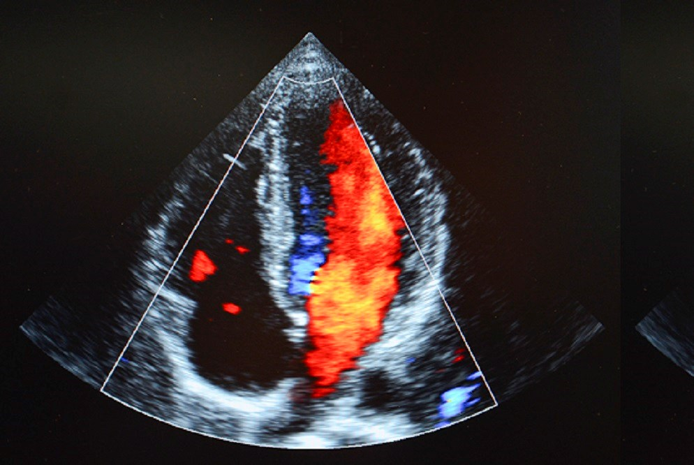 HIV Viral Loads May Affect Echocardiographic Pulmonary Pressure