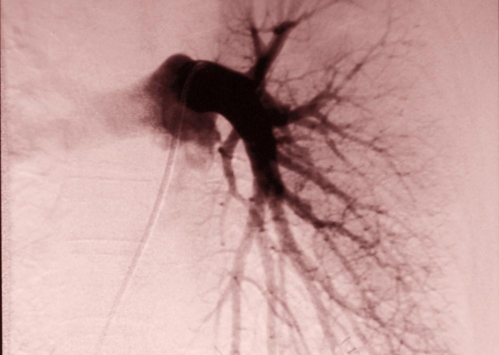 New Trial to Assess Dabigatran in Intermediate-Risk Pulmonary Embolism