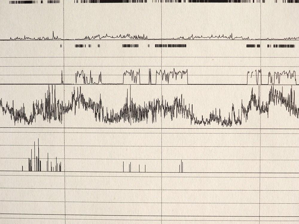Apnea/Hypopnea Index in OSA Improves With Dronabinol