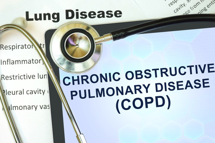 NIH: National Action Plan Unifies Approach to Ending US COPD Crisis