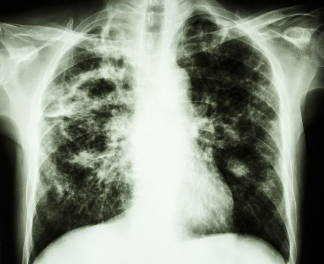 Drug-resistant TB can rapidly spread through a high-risk population.