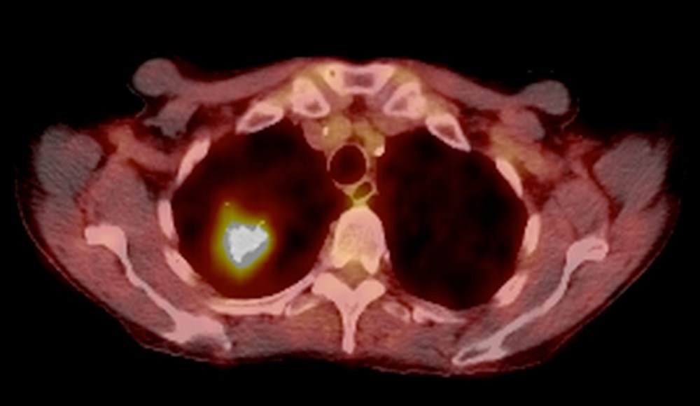 Forty-two patients with inoperable or unresectable NSCLC  were included in the study. <i>Photo Credit: Du Cane Medical Imaging Ltd/Science Source.</i>
