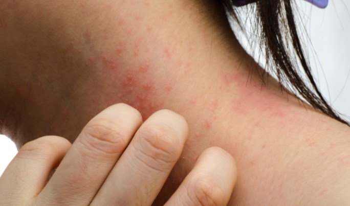 Severe Atopic Dermatitis Management Guidelines Developed