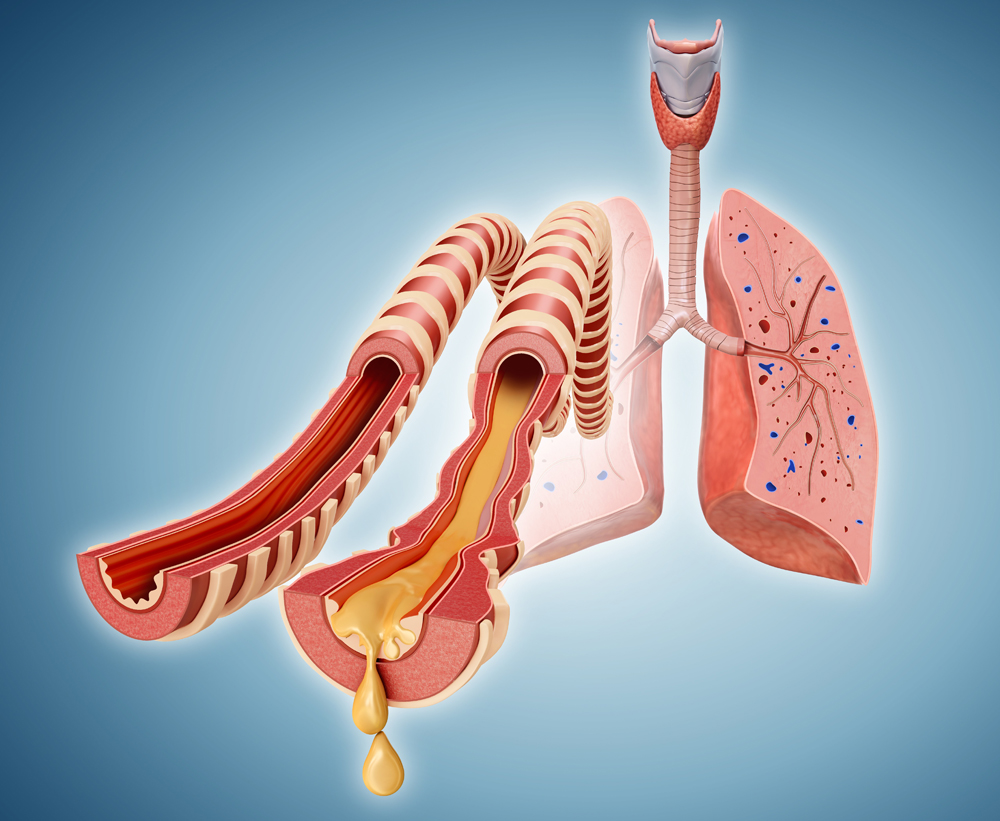 is incentive spirometry contraindicated in copd