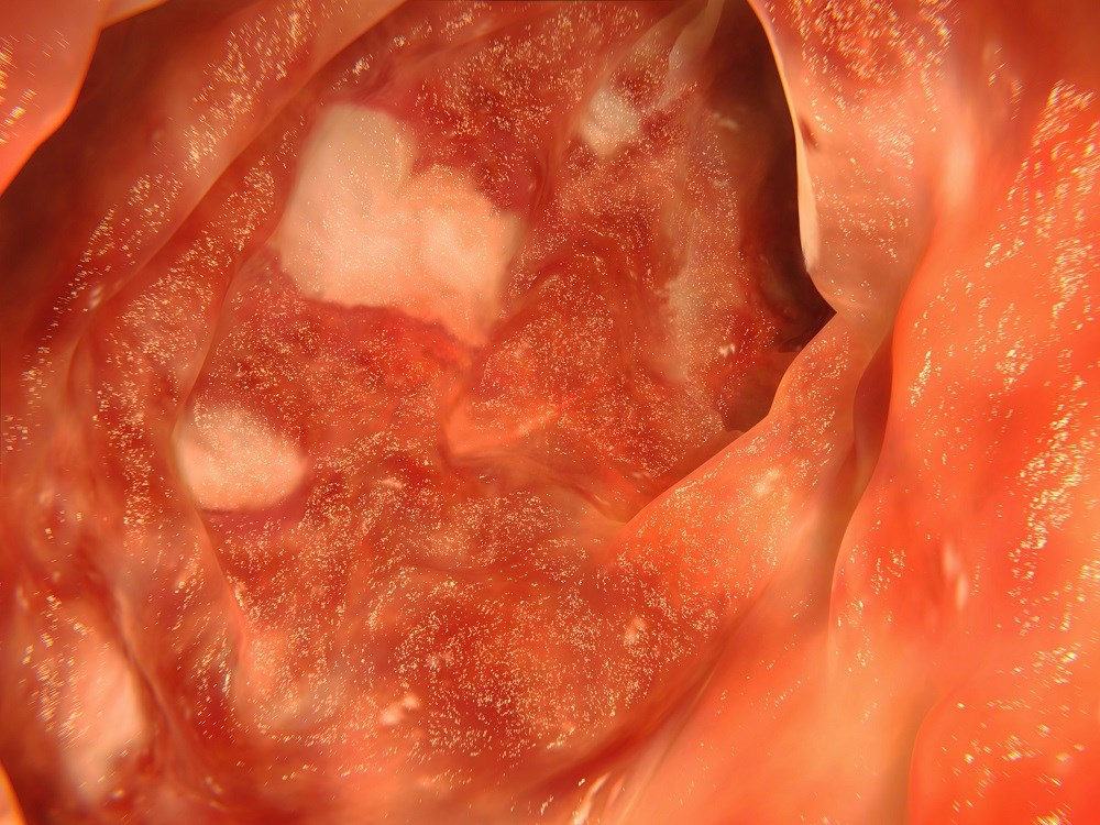 The researchers found that a diagnosis of asthma was associated with increased odds of incident Crohn's disease.