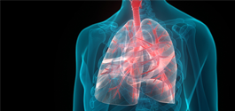 Interstitial Lung Disease Diagnosis Improved Using Rheumatologic Assessment