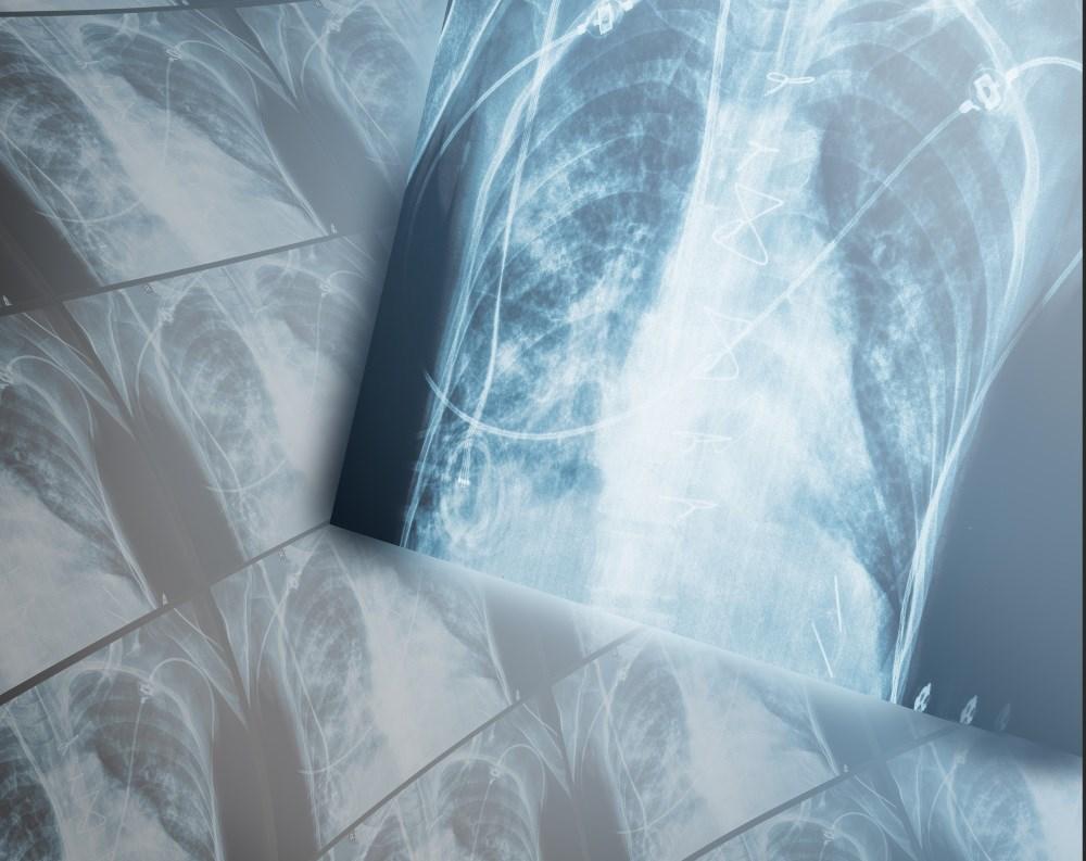Umeclidinium/Vilanterol Efficacy Assessed in Elderly COPD Patients