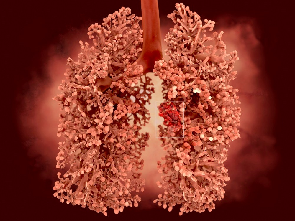 Lung Cancer Incidence Higher for Young Women Than Young Men
