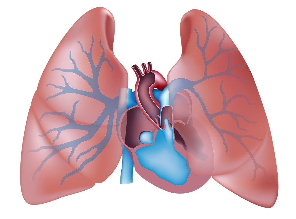 Pulmonary Hypertension Linked With Worse Prognosis in CKD, ESRD