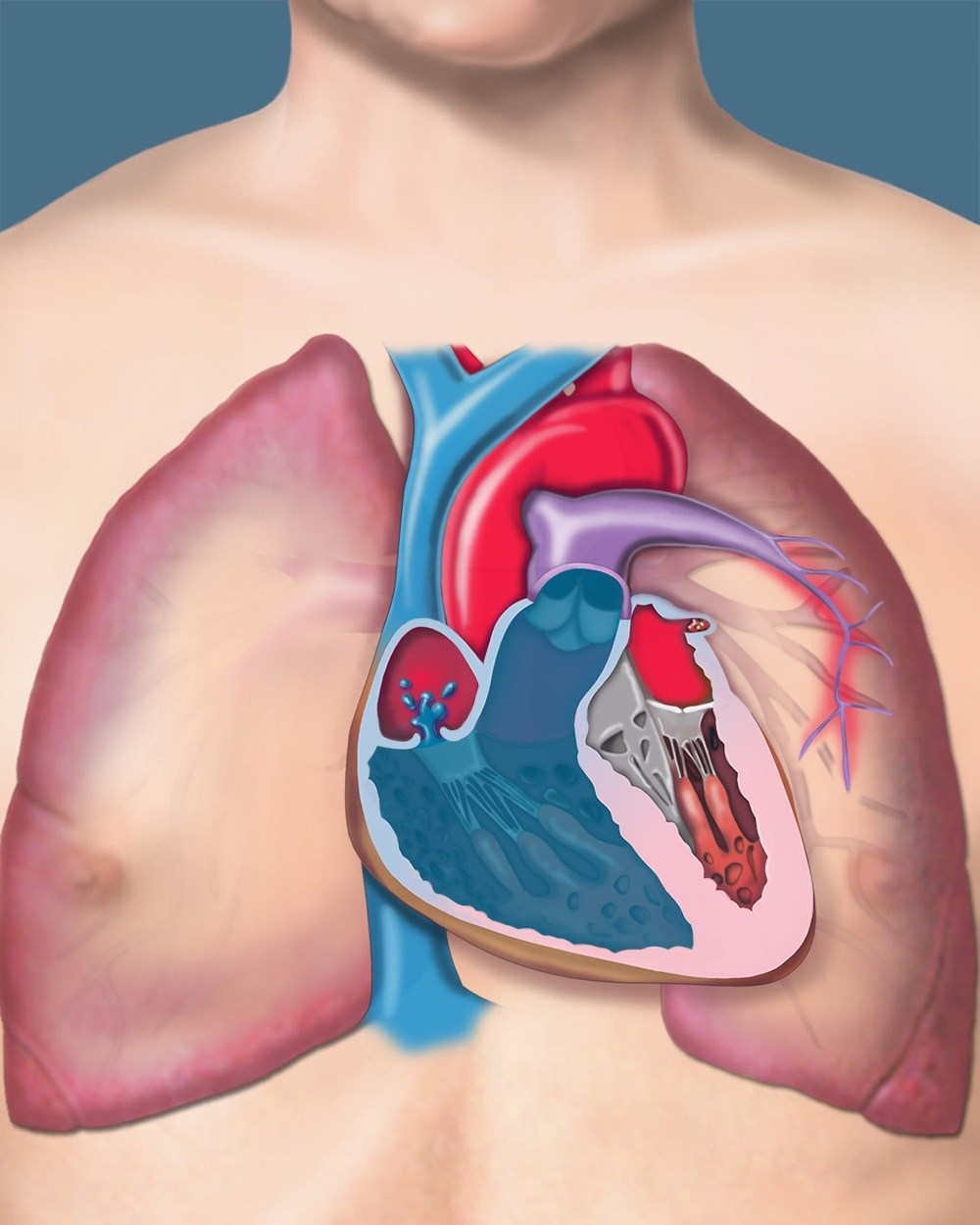Thoracic and Pulmonary Conditions Associated With Connective Tissue Disease