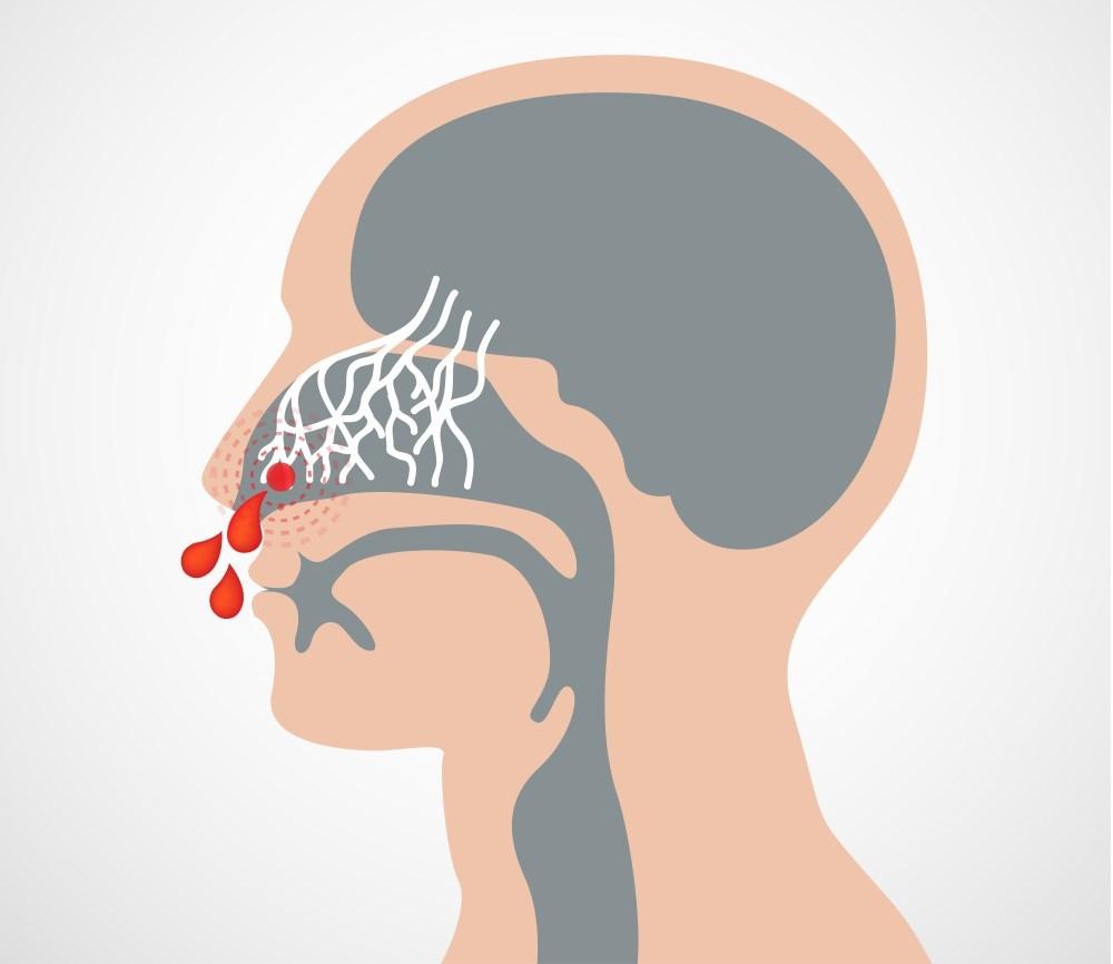 Association Between Pulmonary Hypertension and Hereditary Hemorrhagic Telangiectasia