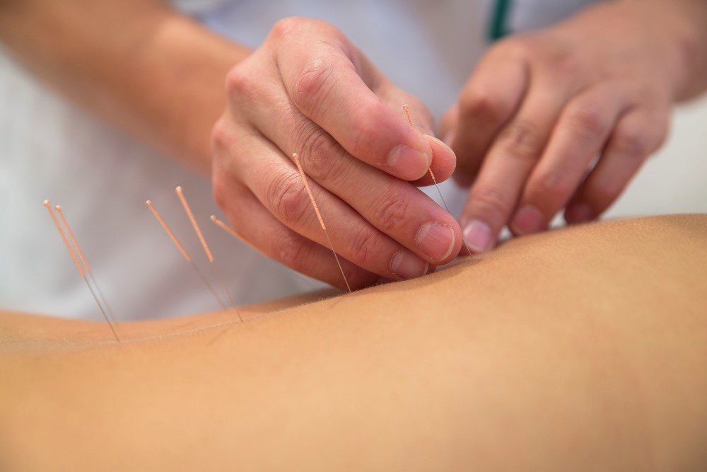 Meta-analysis results suggest that acupuncture is beneficial in treating cancer-related fatigue.