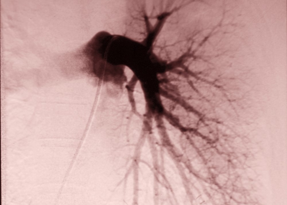 No significant differences in right-sided heart pressures or mortality rates were found in patients with pulmonary emboli treated with either catheter-directed thrombolysis or anticoagulation.