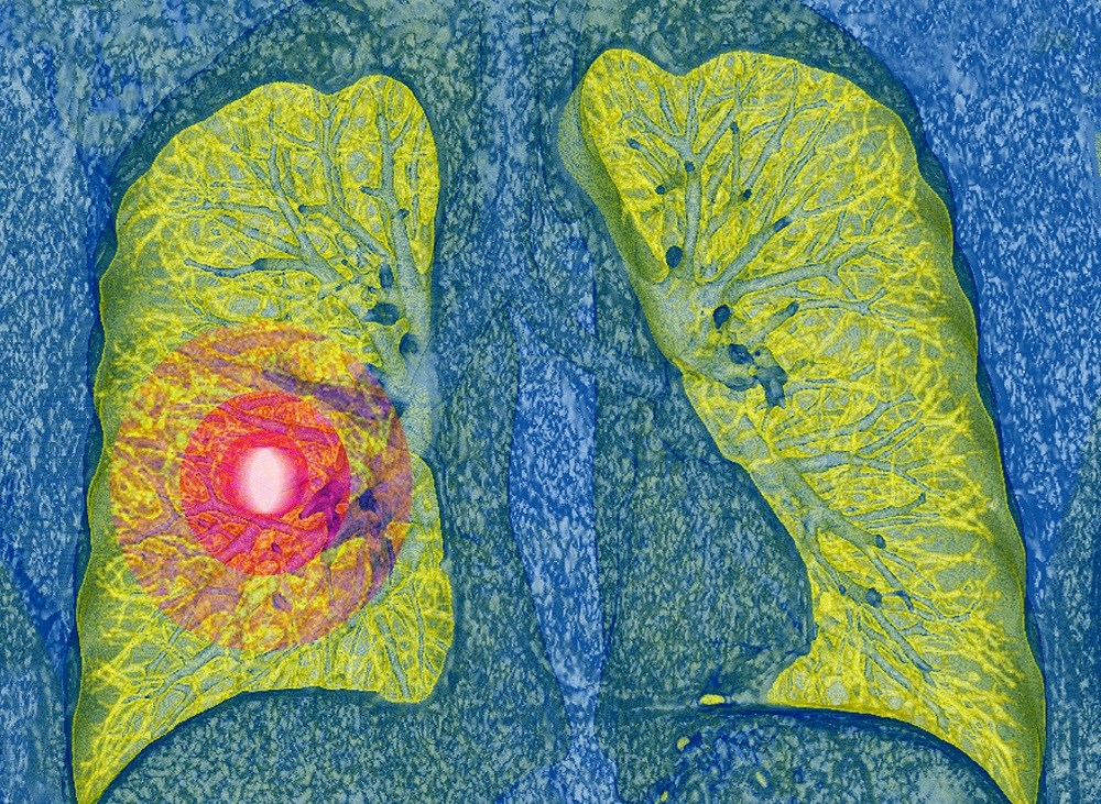 Researchers compared the risk for thromboembolic events in patients with lung cancer who were treated with either cisplatin or carboplatin.