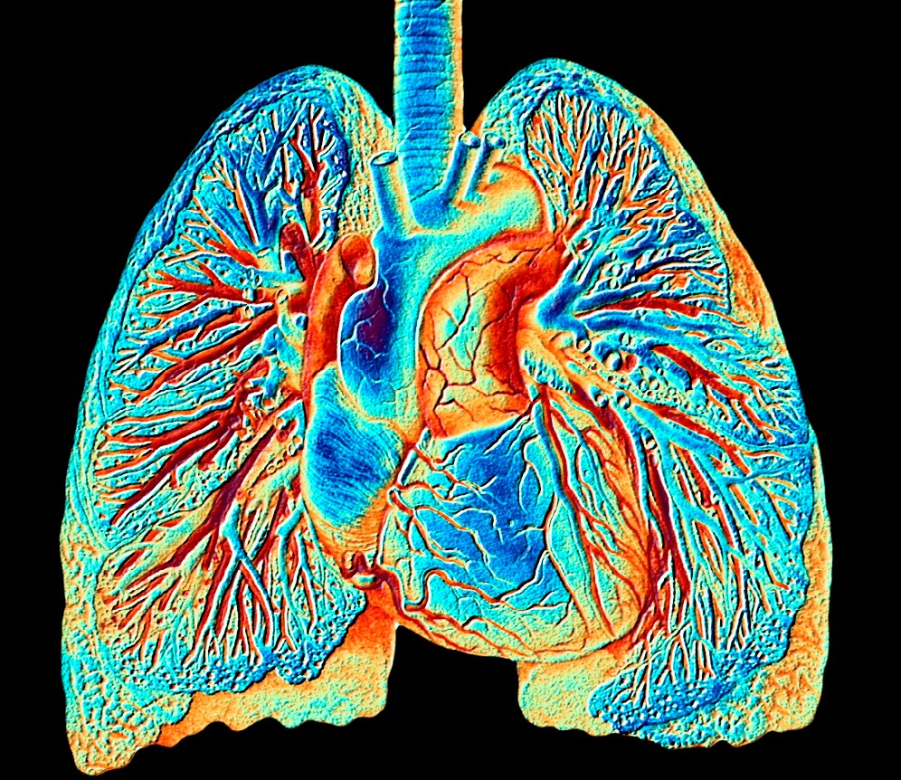 Reduced Lung Function Associated With Mortality in Individuals With HIV
