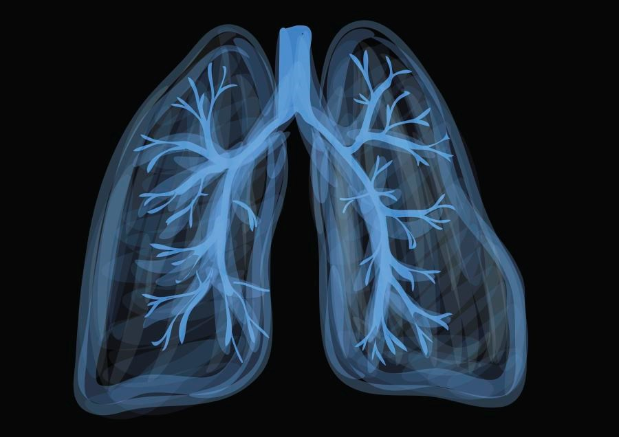 Corticosteroids Associated With Reduced Pneumonia-Related Mortality