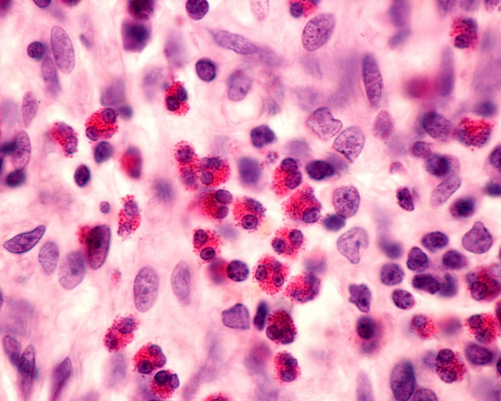 High Blood Eosinophil Count Linked to Asthma-Related Hospital Readmission