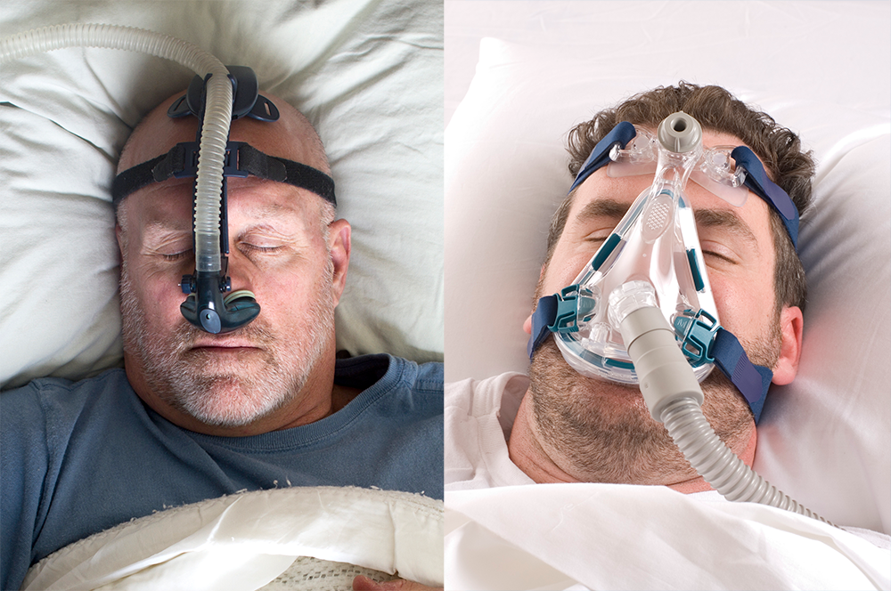 Obstructive Sleep Apnea: Effectiveness of Oronasal vs Nasal CPAP
