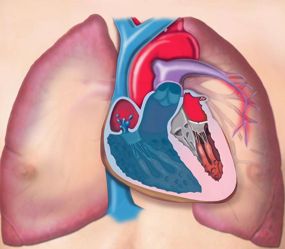 Pulmonary Hypertension Treatments Targeting NO Pathway Compared for Safety