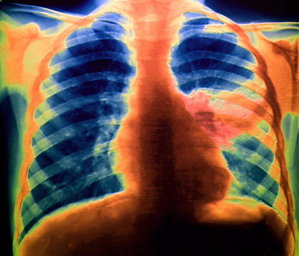 An Inflammatory Response: Cardiovascular Complications of Pneumonia