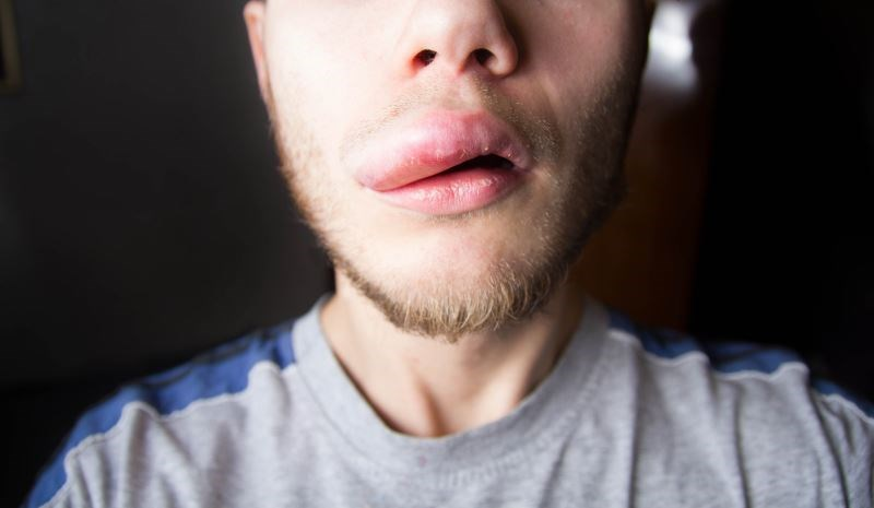 Lanadelumab Reduced Attack Rates in Hereditary Angioedema