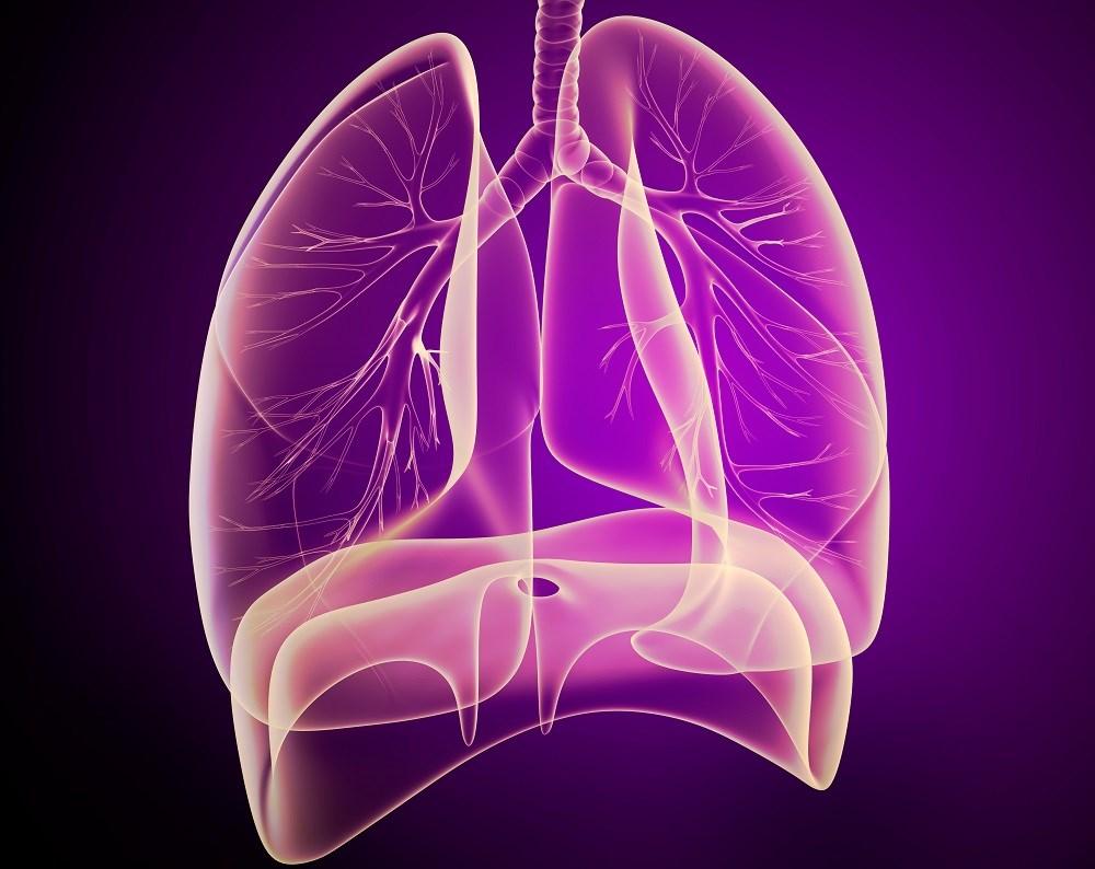 Idiopathic Pulmonary Arterial Hypertension and Risk for Cardiac Events