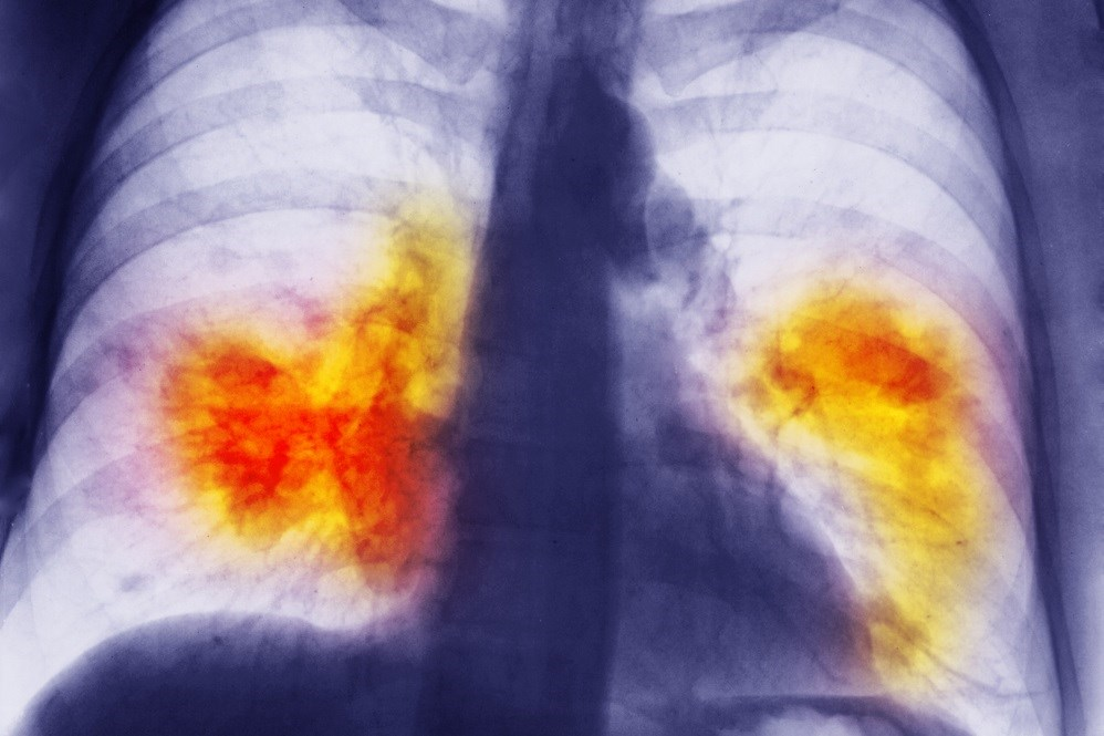 A diagnosis of visual emphysema was significantly associated with a diagnosis of lung cancer in individuals with COPD.