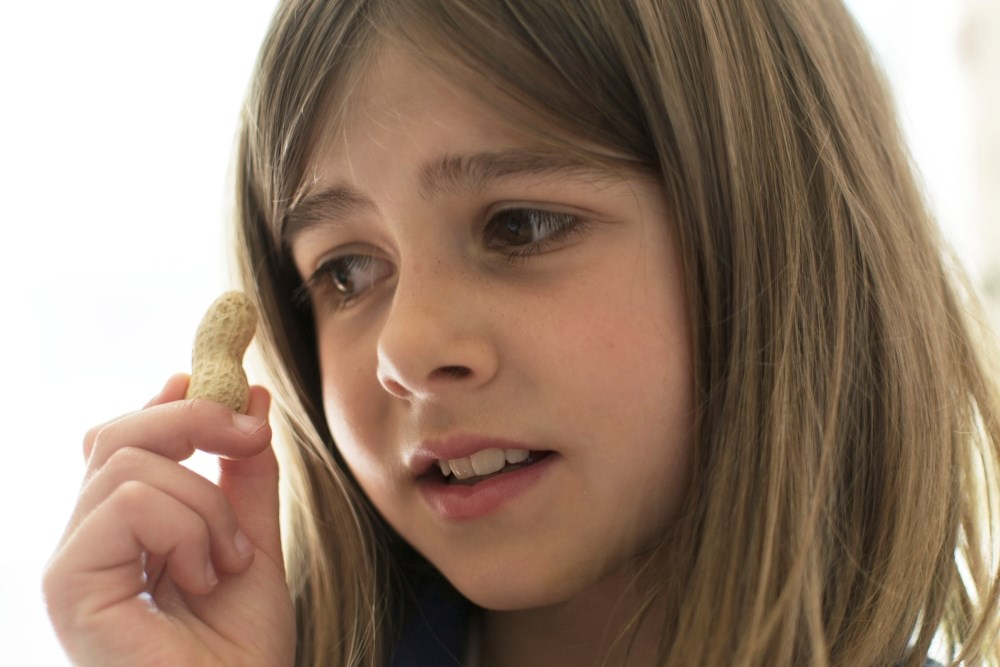 Most Parents Willing to Enroll Child in Food Allergen Trials