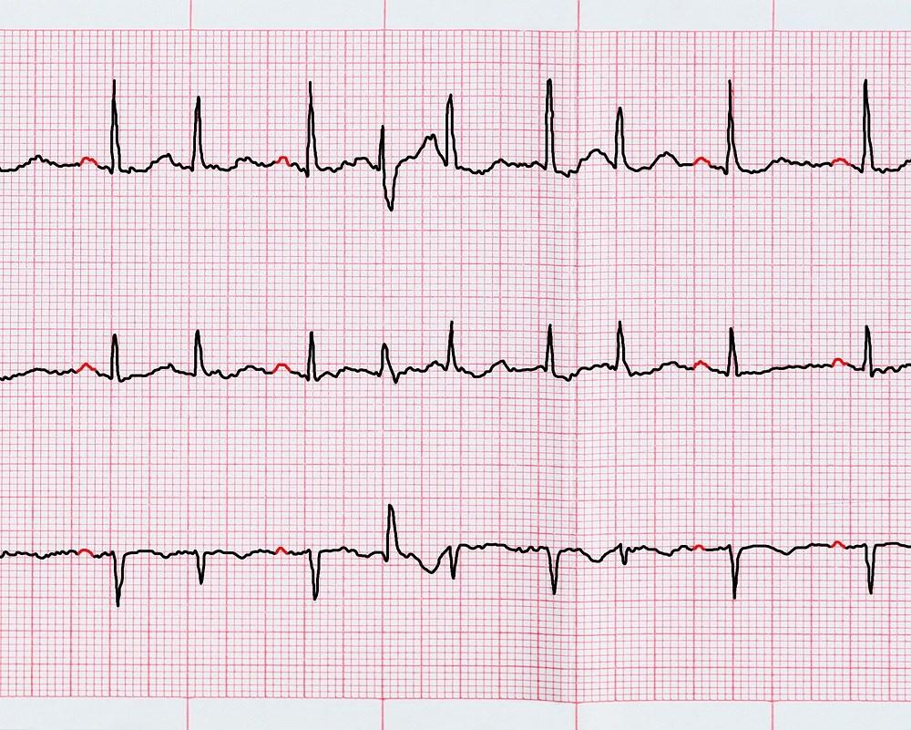 Pulmonary Arterial Hypertension Outcomes With Atrial Arrhythmia