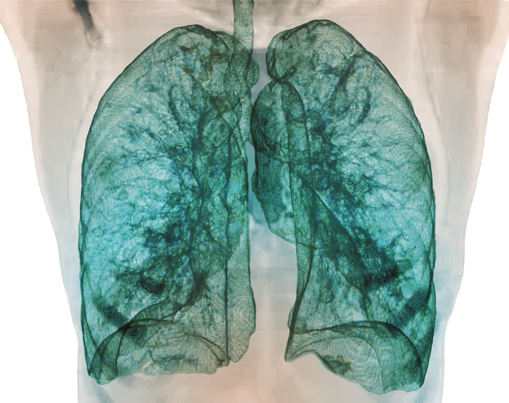 COPD Risk Predicted by Large Airway Dimensions on Computed Tomography