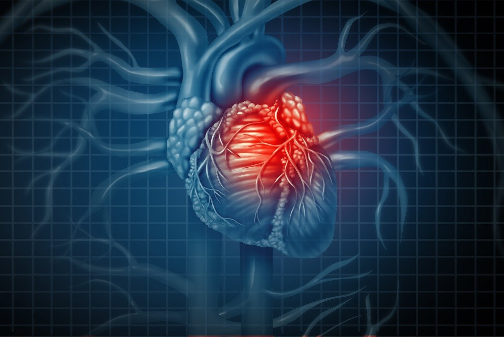Case Study: Cardiovascular Complications of Chronic Obstructive Pulmonary Disease