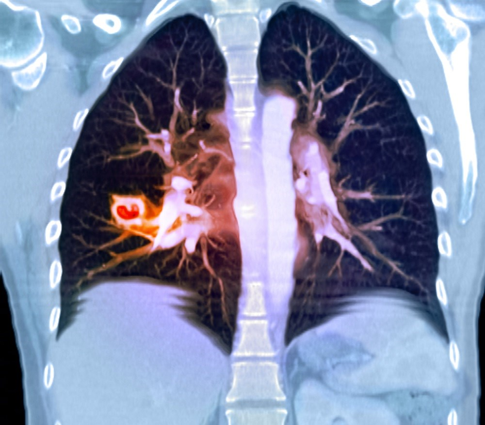 Lung cavities observed in chest radiography can include a broad spectrum of differentials, making them challenging to diagnose. <i>Photo Credit: Du Cane Medical Imaging Ltd/Science Source</i>