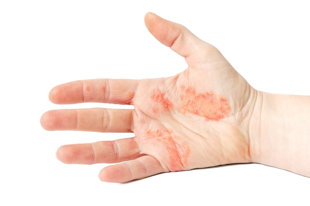 Physicians Can Help Children, Teens Adhere to Eczema Treatment Plan