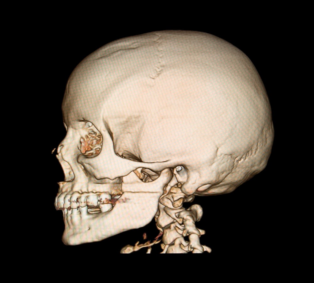 Obstructive Sleep Apnea Linked to Thinning of Calvaria, Skull Base