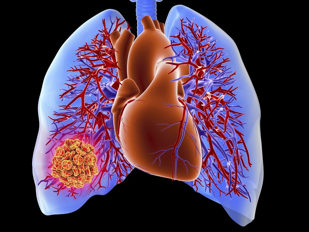 Copeptin May Serve as Prognostic Biomarker for Pulmonary Embolism
