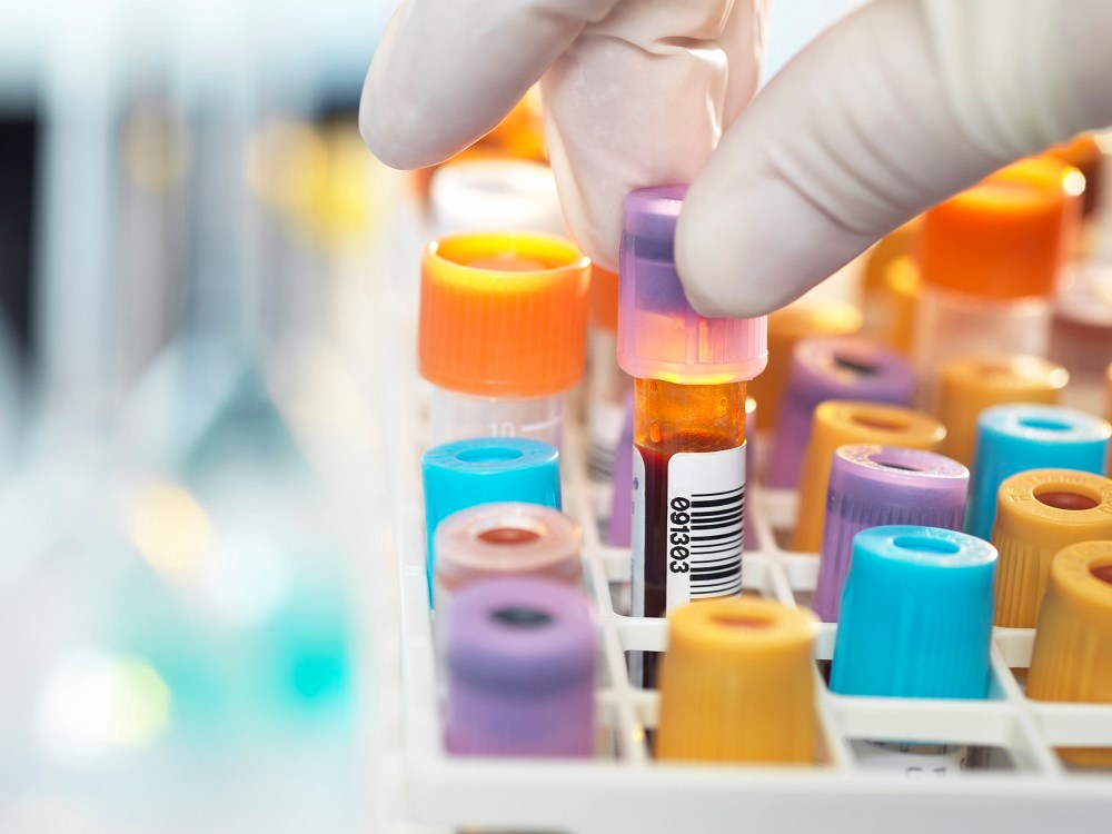 Type 2 Biomarkers May Predict Exacerbations in Severe Refractory Asthma