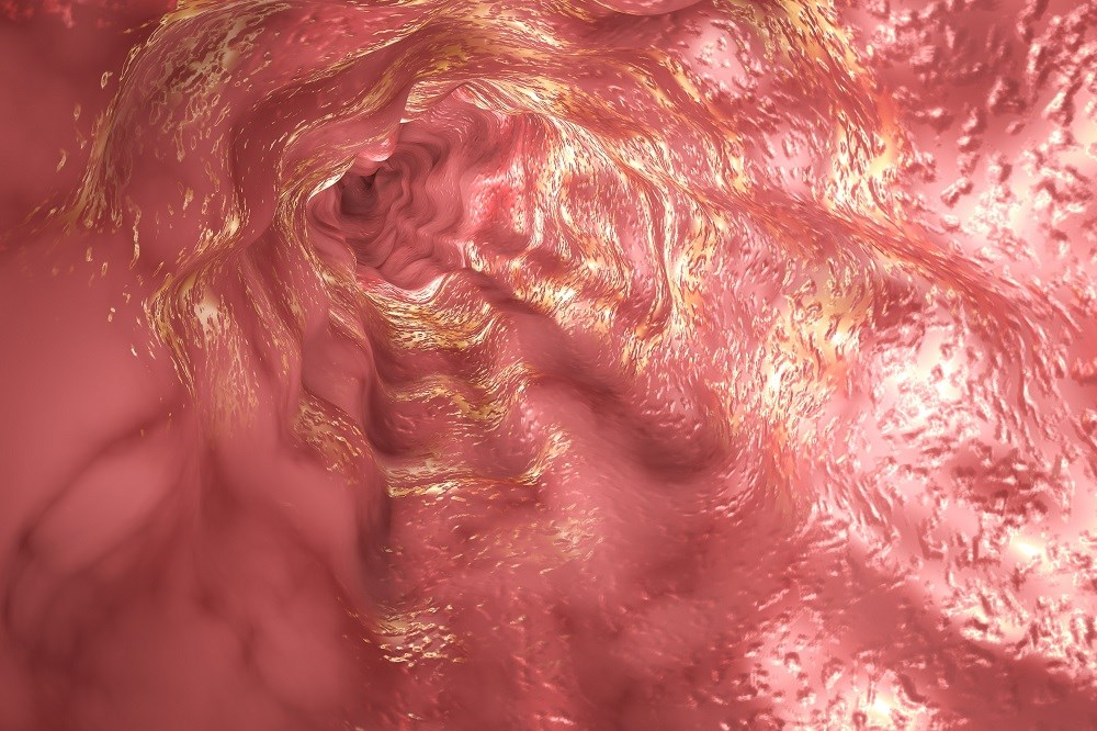 More robustly designed studies are needed to identify the exposures involved in the development of eosinophilic esophagitis.
