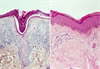 PAH-Associated Connective Tissue Diseases: A Case for Separating SSc, SLE