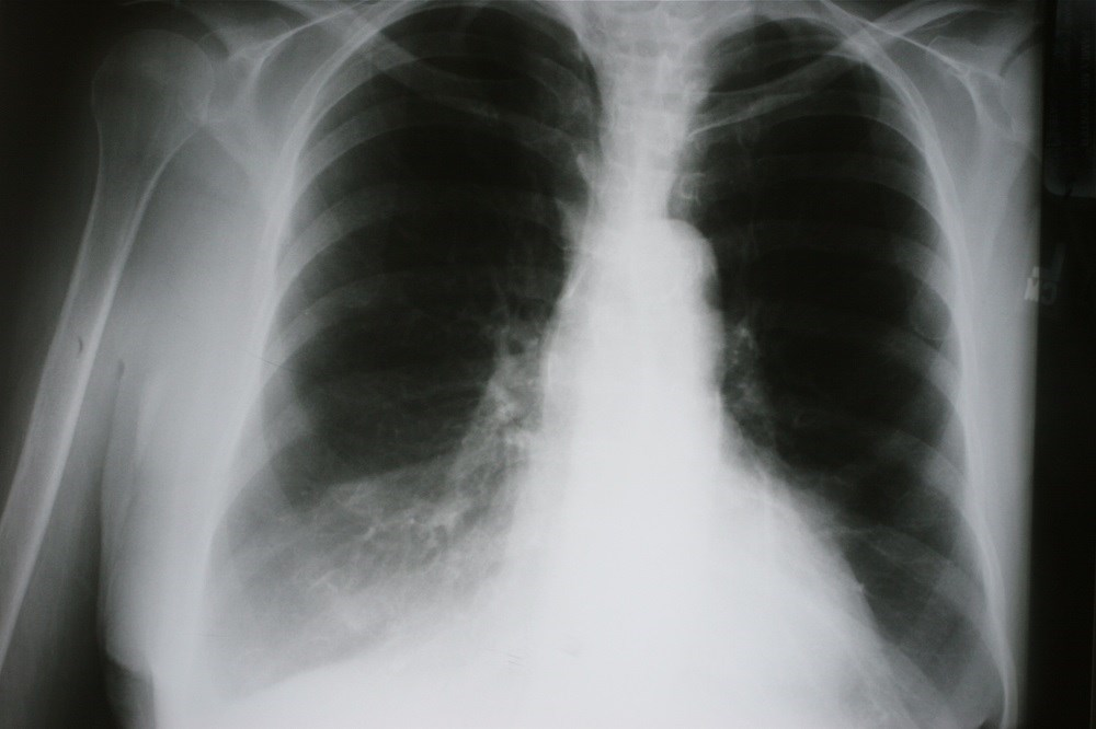 COPD and Obesity: Is There a Dose-Response Relationship in Nonsmokers?